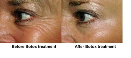 Botox 20