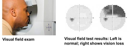 Glaucoma field test